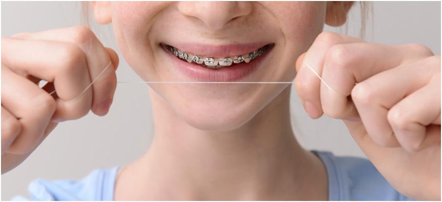 Productos recomendados ortodoncia